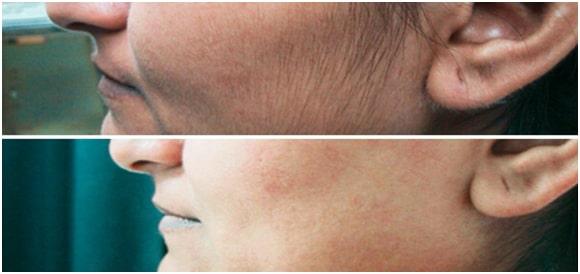 Laser Cryo Hair removal