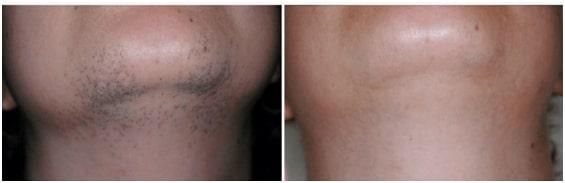 Neck Laser Hair Removal