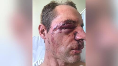 face-injury