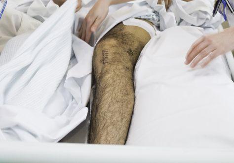 injury-limbs